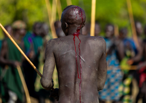 Suri tribe warrior bleeding during a donga stick fighting ritual, Omo valley, Kibish, Ethiopia