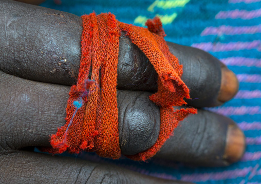 Fingers broken after a donga fight, Kibish, Omo valley, Ethiopia