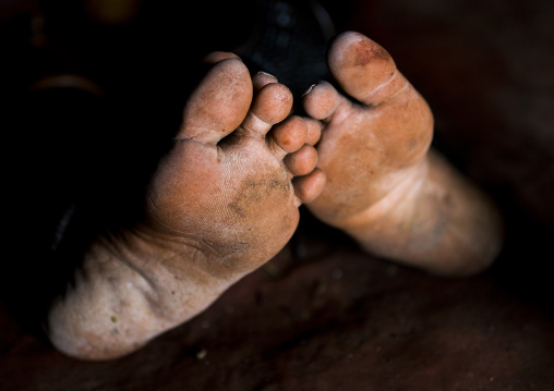 Himba Women Feet, Epupa, Namibia