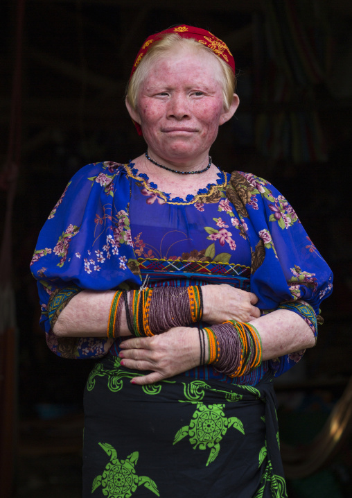 Panama, San Blas Islands, Mamitupu, Portrait Of An Albino Kuna Tribe Woman