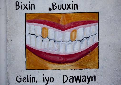 A Painted Sign Advertising For A Dentist Depicting A Mouth With Some Golden Teeth, Somaliland