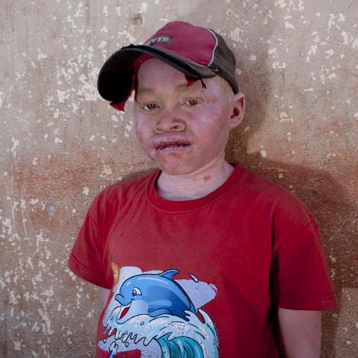 Albinos Boy Called Zekena, Iona Village, Angola