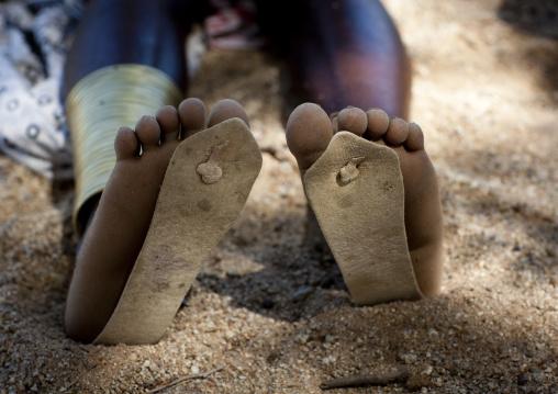 Mucubal Wearing Too Small Flip Flops, Virie Area, Angola