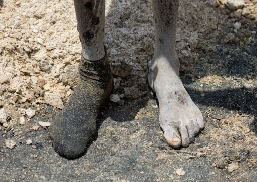 Borana tribe man feet wounded after diving in the volcano crater to collect salt, Oromia, El Sod, Ethiopia