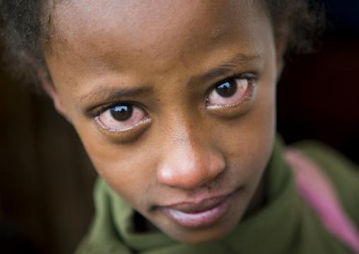 Crying Girl Looking At Camera, Jemu, Omo Valley, Ethiopia