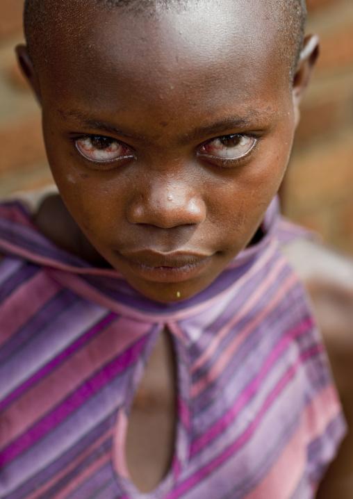 Rwandan girl crying, Kigali Province, Kigali, Rwanda