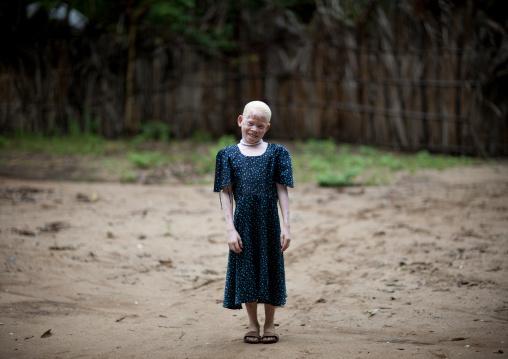 Zamda, Albino girl in mikindani, Tanzania