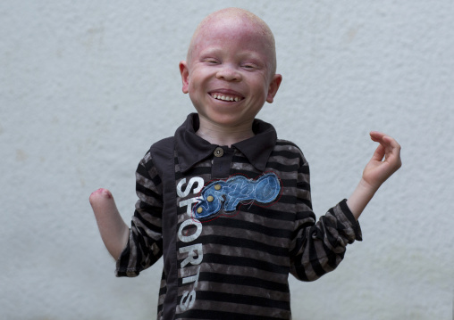 Tanzania, East Africa, Dar es Salaam, baraka cosmas a boy with albinism at under the same sun house, he lost his right hand in a witchcraft attack