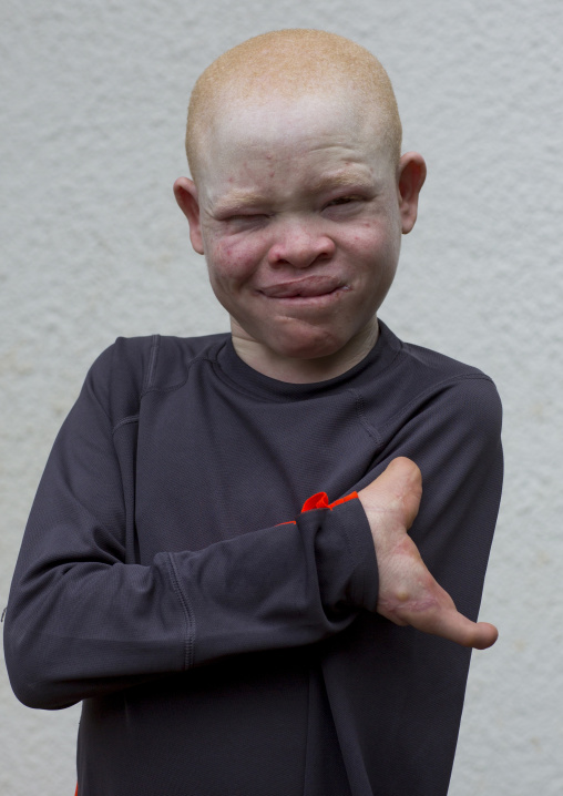 Tanzania, East Africa, Dar es Salaam, emmanuel festo a boy with albinism at under the same sun house, his left armwas hacked off above the elbow, he lost fingers on the right hand and his to