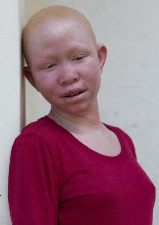 Tanzania, East Africa, Dar es Salaam, pendo serengema a girl with albinism at under the same sun house, she lost her right arm