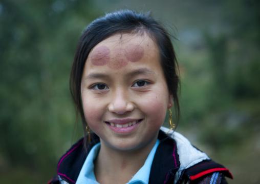 Black hmong girl with tattoos on the forehead, Sapa, Vietnam